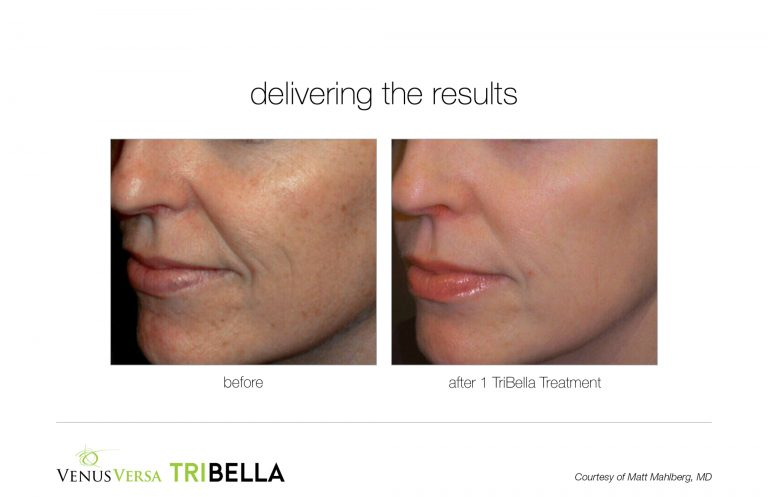 tribella-1treatment-BA001