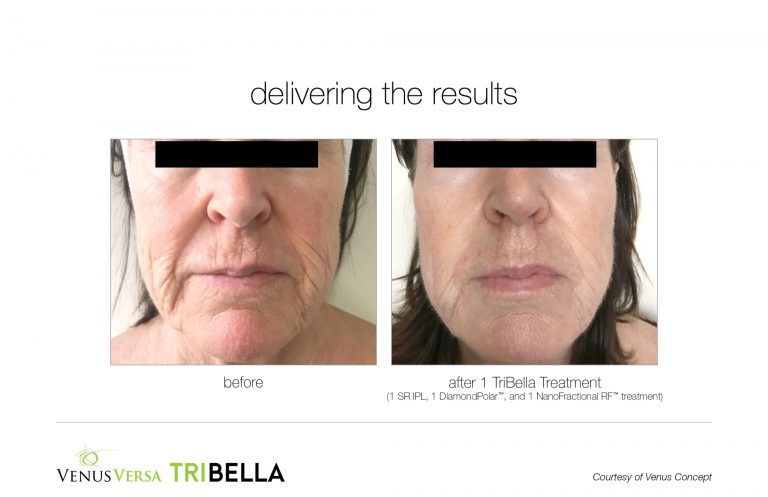 tribella-1treatment-BA002