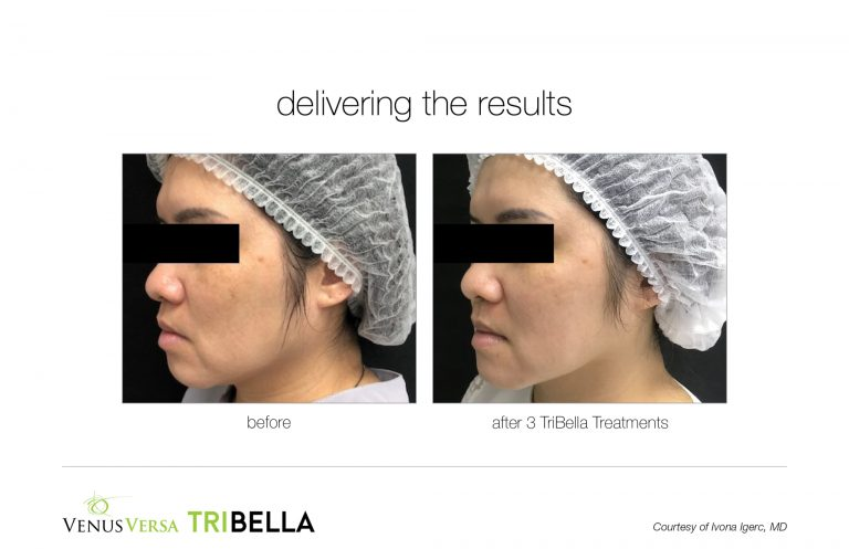 tribella-3treatments-BA003
