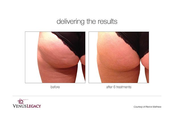 VenusLegacy_B&A_ReviveWellness_6Tx-fixed