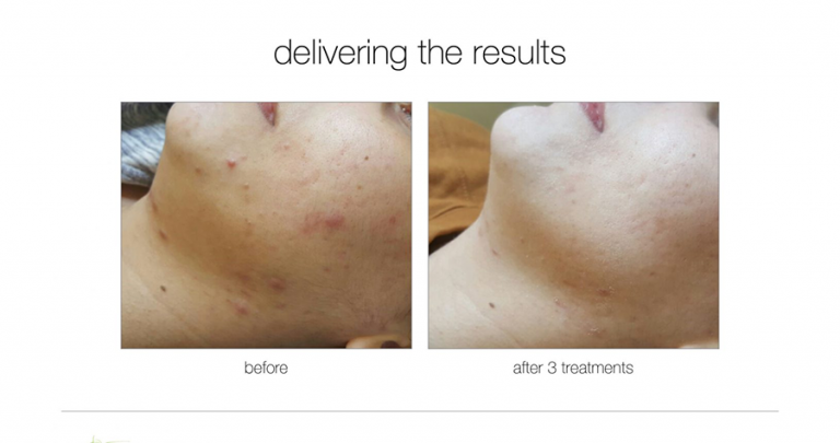 acne-treatment-before-after-11